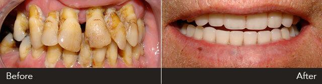 At Dentures