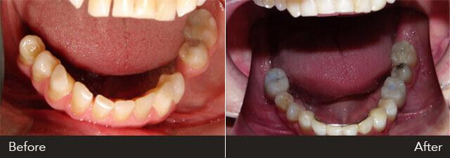 full mouth rehabilitation case 3