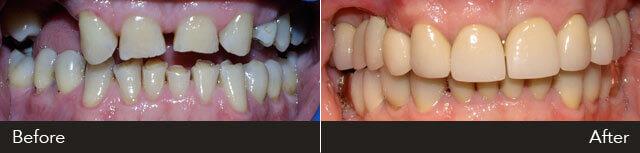 GM Full Mouth Rehabilitation