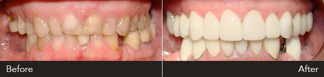 JM Full Mouth Rehabiliation