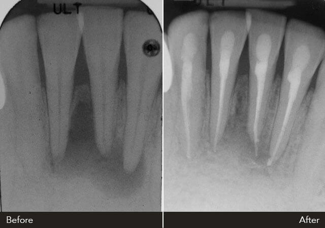 xray of front teeth - photo #27