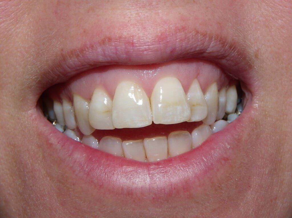 dental decease amelogenesis imperfecta essay