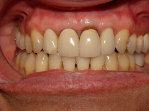 This is the condition of the front teeth that prompted treatment. The left upper front tooth showed root darkness at the gumline, and there was a crack in the porcelain of the patient's upper right lateral incisor (the one next to the right front tooth)