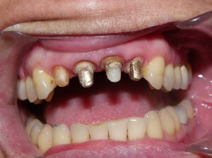 Here is what teeth look like when prepared for crowns. In this case, the patient was fortunate to have had a fair bit of remaining tooth structure under the old crowns, making it feasible to make new ones.