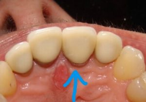 From the underside, we can also see some concerns from an open margin between the tooth and the crown. Ideally, there should be no gap. The gap was open enough that we could determine the presence of dental decay setting in under the crown.