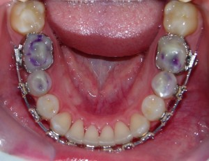 Lower arch orthodontic treatment in progress