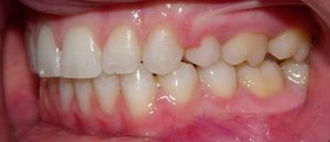 Left view of the teeth after orthodontic treatment.