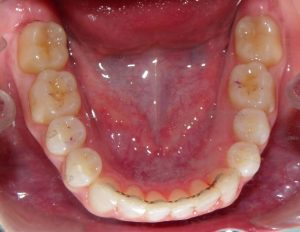 View of the lower arch after treatment with a lower retainer bonded