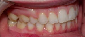 Post-orthodontic view of the right side teeth with cheek retractors in place.