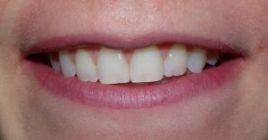 View of the patient's smile after orthodontic treatment