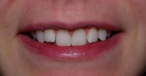 Front view of the patient's smile prior to orthodontics