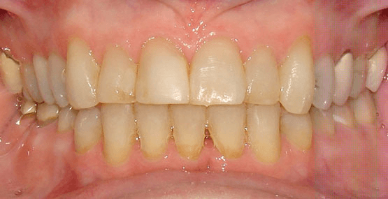 Orthodontic After