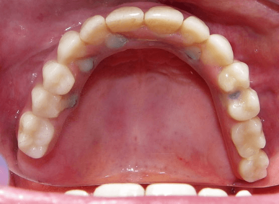 Smile Reconstruction After