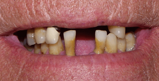 Smile Reconstruction Before