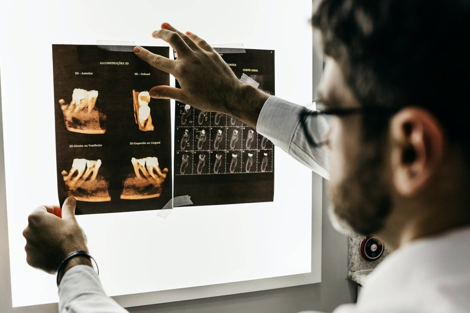 a male dentist looking at x-rays of teeth
