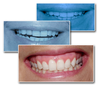 Collage of Teeth Images