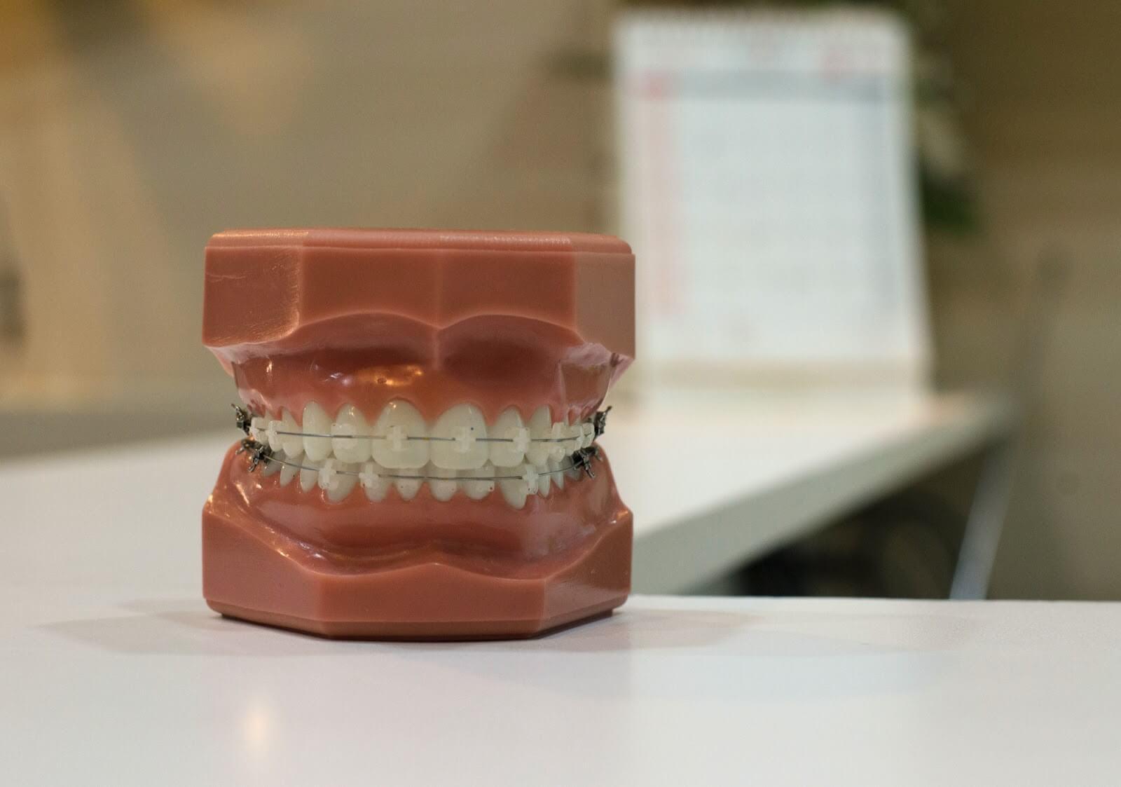 a set of fake teeth sitting on a desk